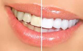 Какое отбеливание зубов самое эффективное