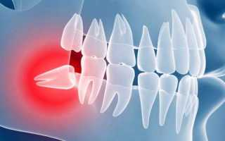 В каких случаях удаляют зуб мудрости