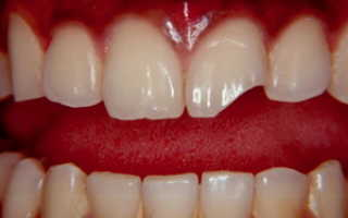 Нарастить передний зуб
