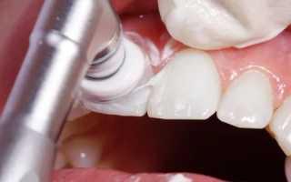 Профессиональная чистка зубов польза или вред