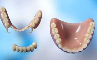 Съемные протезы для зубов какие лучше