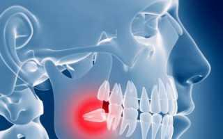 Болит зуб мудрости симптомы