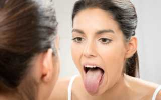 Катаральный глоссит лечение