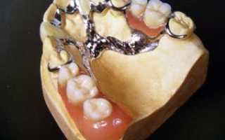 Частичный протез на верхнюю челюсть
