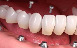 Виды имплантов для зубов от разных производителей