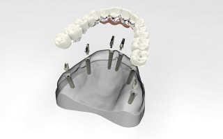Полный съемный протез на имплантах