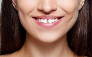 Большая щель между передними зубами