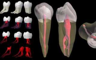 Когда удаляют нерв в зубе
