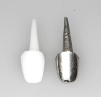 Вкладка в зуб что это такое