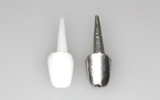 Вкладки зубные что это такое