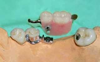 Временный зубной протез на один зуб