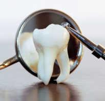 Удаление дистопированного зуба что это