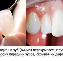 Насадки на зубы виниры