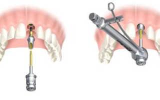 Сколько дней болит десна после имплантации