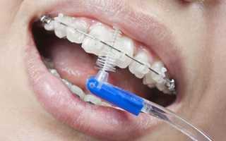 Как правильно чистить зубы в брекетах
