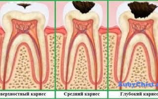 Чернеет зуб около десны