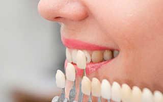 Эстетическое восстановление зубов