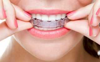Трейнер на зубы