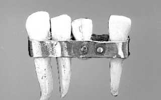 Первые зубные протезы