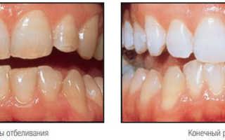 Домашнее отбеливание зубов с капами