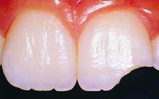 Что делать если крошится зуб