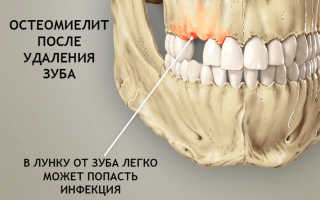 Неврит тройничного нерва после удаления зуба