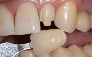 Как нарастить зуб в домашних условиях