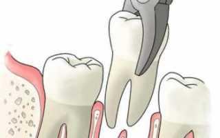 Через сколько проходит боль после удаления зуба