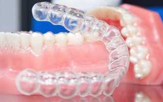 Что такое каппа в стоматологии