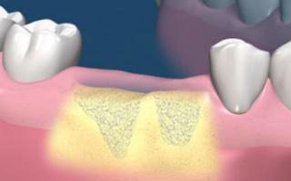Наращивание костной ткани для имплантации