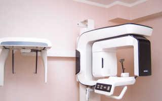 Томография зубной челюсти