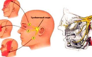Лечение тройничный нерв