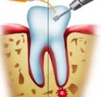 Удаление зуба с кистой на корне