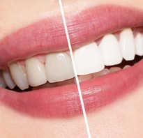 Белые пятна на зубах после отбеливания