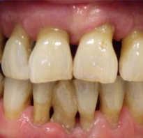 Десна покраснела вокруг зуба