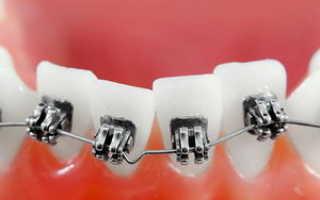 Как выравниваются зубы в брекетах