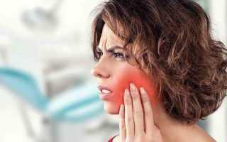 Воспаление надкостницы челюсти