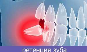 Зуб растет в десне у ребенка