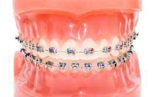 Кривые молочные зубы у ребенка