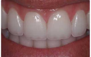 Что такое люминиры на зубы