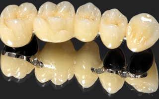 Из чего делают зубные протезы материалы