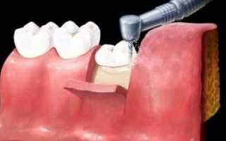 После удаления зуба мудрости болит лимфоузел