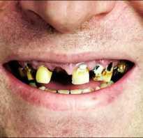 Зубы и курение