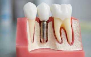 Анкерный штифт в стоматологии