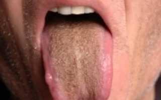 Коричневый язык причины после антибиотиков