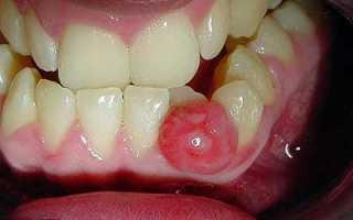Киста зуба удаление