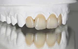 Виды коронок на зубы и какие лучше
