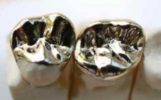 Металлические коронки с напылением