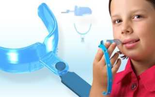 Что такое трейнер для зубов