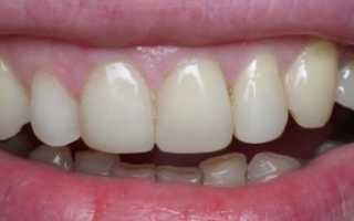 Художественная реставрация зубов что это такое